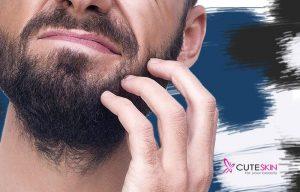خلاصی از خارش ریش ها در اقایان