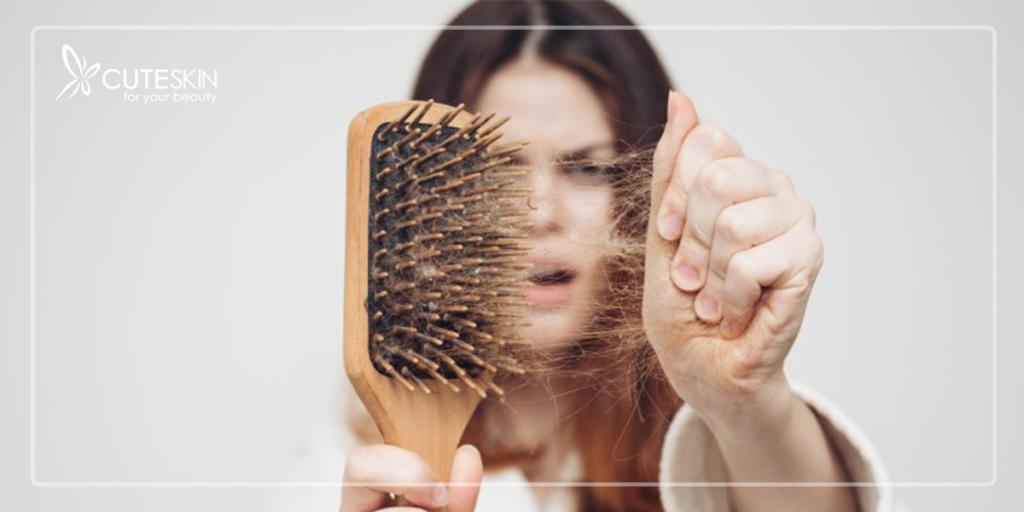 درمان ریزش مو با لیز