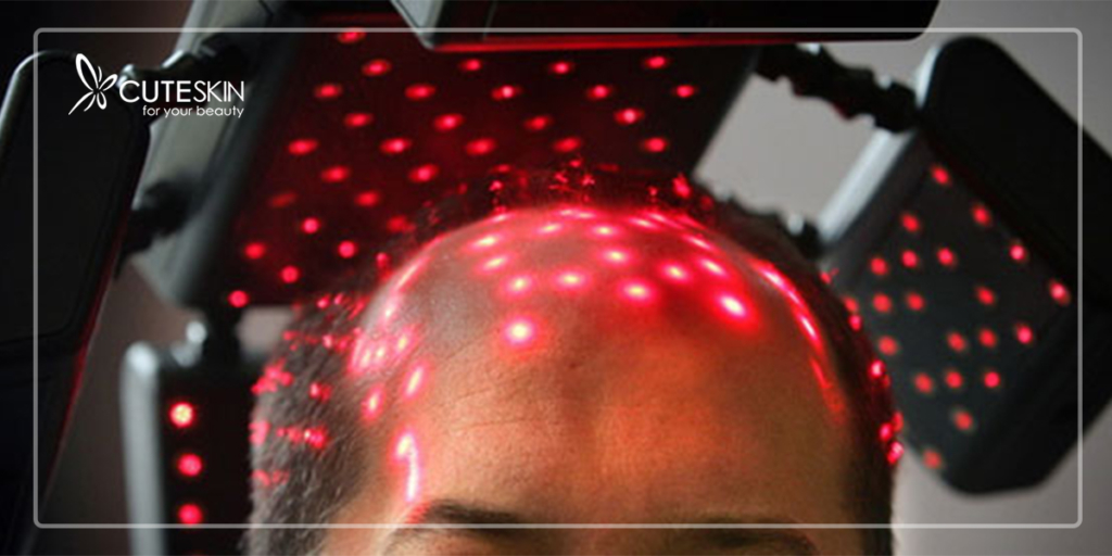 laser-hair-loss-treatment