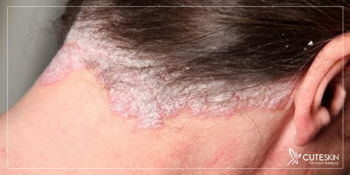 قارچ پوست سر