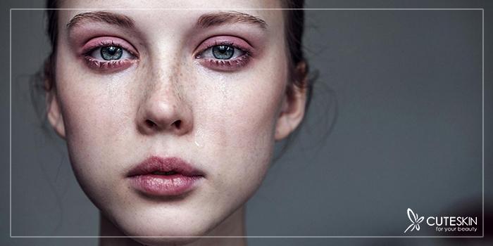 تأثیر گریه بر پوست صورت