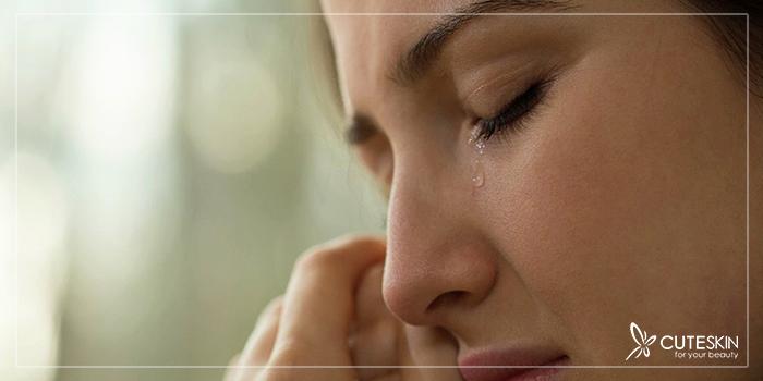 گریه و پوست صورت