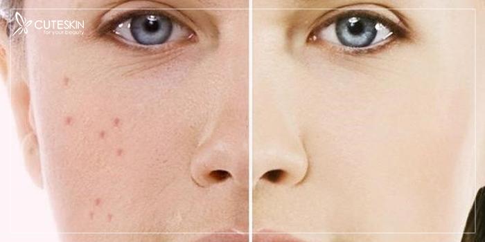 تاثیر گروه خونی بر پوست