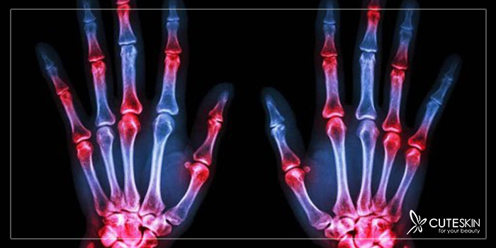 درد کف دست