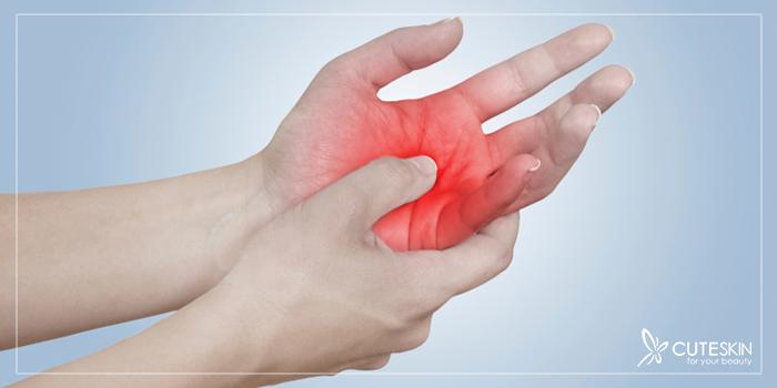 دردهای کف دست