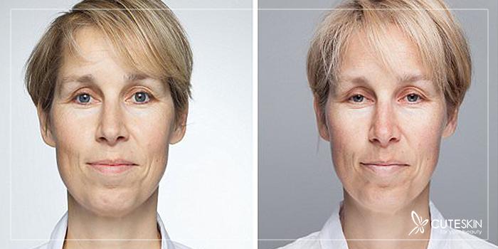 تأثیر خواب بر پوست صورت