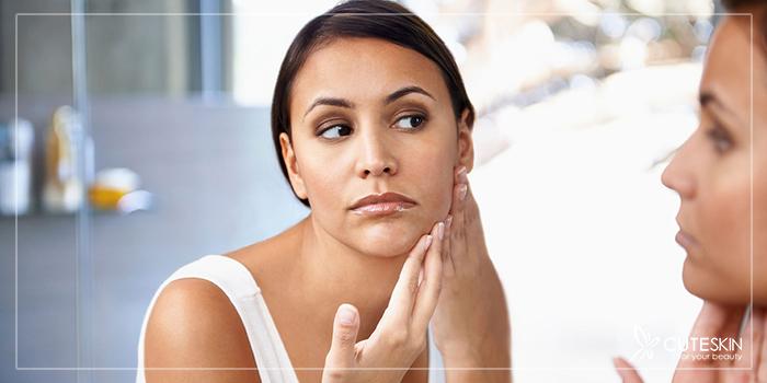 تأثیر قرص ضدبارداری بر پوست