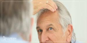 عوامل بروز آلوپسی