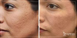 عوارض قرص راکوتان در خشکی پوست