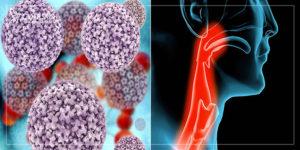 عوارض اچ پی وی