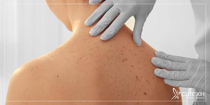 سرطان پوست و درمان آن