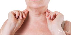 جوانسازی پوست گردن با جراحی