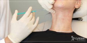 جوانسازی پوست گردن بدون جراحی