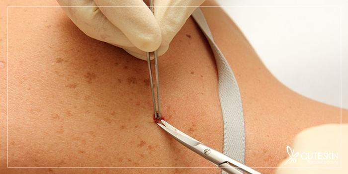 درمان سرطان پوست