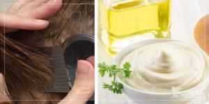 درمان شپش سر با محصولات خانگی