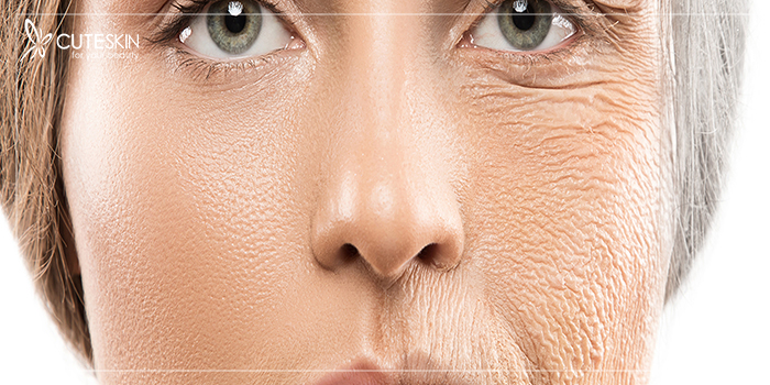 8 ماده غذایی که باعث پیری زودرس پوست میشوند