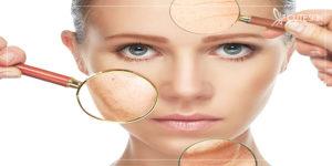 مراقبت از پوست در مقابل استرس