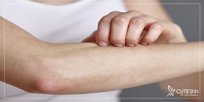 درمان خشکی پوست زانو و آرنج