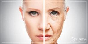 فوتونا برای جوانسازی پوست