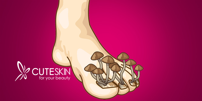 قارچ پوستی چیست؟