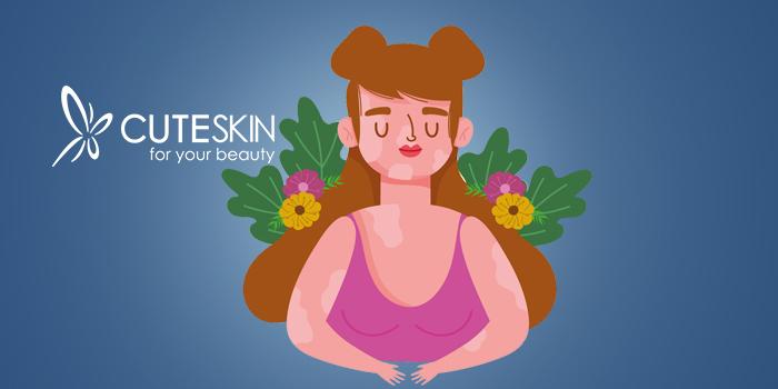 بیماری پوستی ویتیلیگو چیست؟