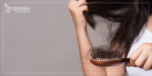 انواع ریزش موی زنان