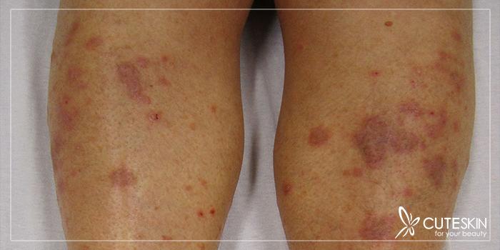 عوارض پوستی ناشی از بیماری لیکن پلان چیست