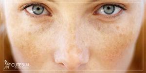اختلال رنگدانه های پوست چیست؟